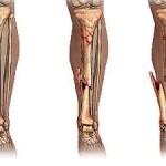 fractura de huesos